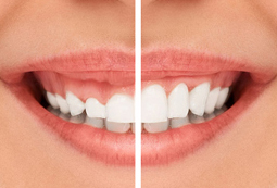 Gummy Smile Correction in Vancouver